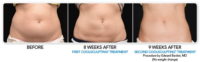 CoolSculpt B and A picture